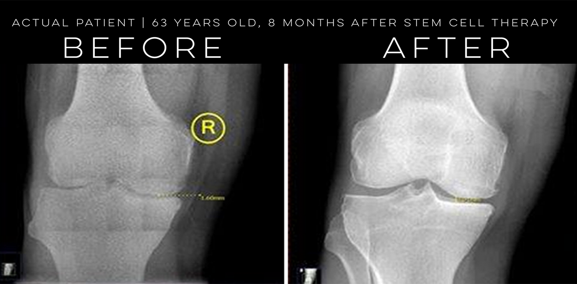 Stem Cell Therapy For Knee Pain Schneider Clinic Elkhart In